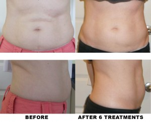 BEFORE-AND-AFTER-FemaleWaist