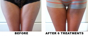 BEFORE-AND-AFTER-InnerThigh