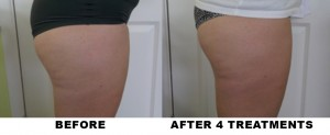 BEFORE-AND-AFTER-LipoLaserThighs